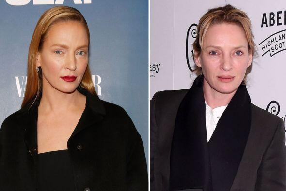 Y sí, se ve totalmente diferente, pero ¿habrá sido por una cirugía o por...