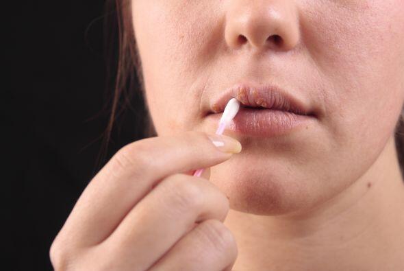 Los labios partidos son síntoma de una deficiencia de vitamina B. Si tus...