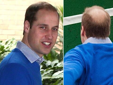 El Duque de Cambridge ya está sufriendo las consecuencias de la e...