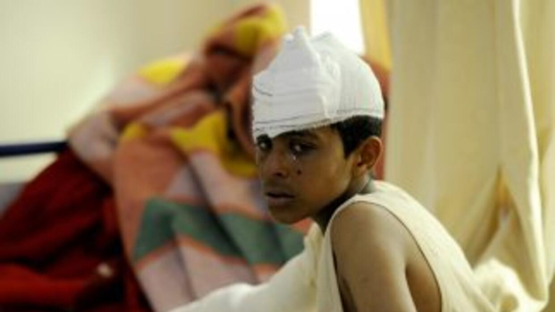 Un niño herido sentado en el borde de una cama en un hospital de LIbia l...