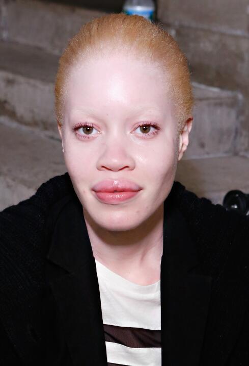 El albinismo de Diandra Forrest es motivo de persecución en algunos país...
