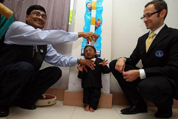 El hijo de un vendedor de frutas de Nepal, con el cuerpo de un niño pequ...