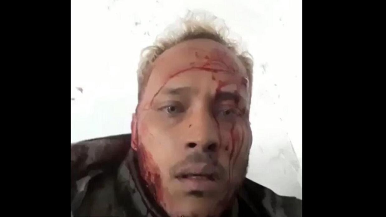 El piloto Óscar Pérez, con la cara ensangrentada, en uno de sus videos e...