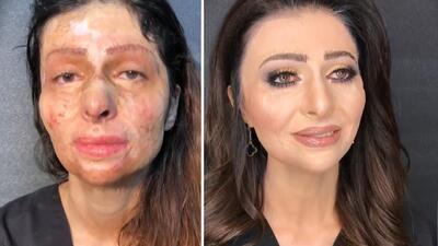 Mujer con quemaduras en su cara recibe una transformación que la deja con lágrimas en los ojos