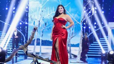 Pese a las adversidades Vanessa Romo demostró que en cuestiones de belleza se rompen los moldes