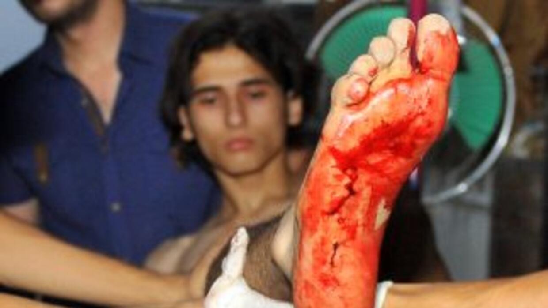 Un enfrentamiento definitivo entre el gobierno y la oposición siria en A...