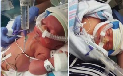 Joven madre pide ayuda de la comunidad para salvarle la vida a su hijo d...