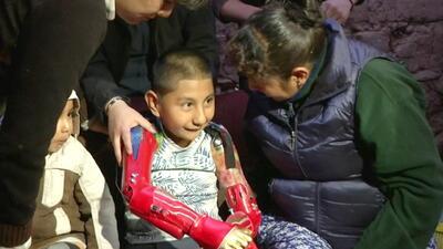 Ángel Gabriel, el niño que nació sin brazos ni piernas, ya tiene alas para volar: las prótesis llegaron hasta Perú
