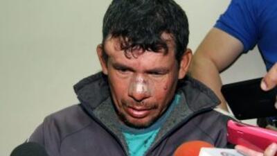 El acusado, Gilberto Benítez, de 42 años.