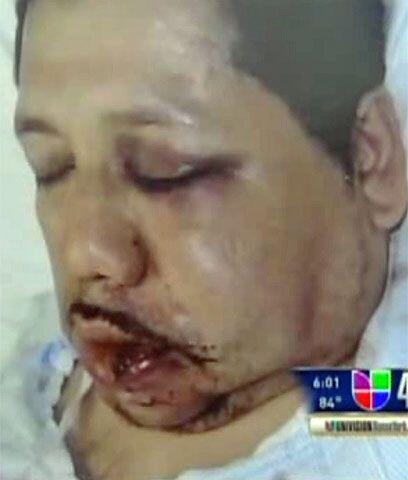 Rogelio Vázquez fue atacado el 25 de abril tras salir de un restaurante...