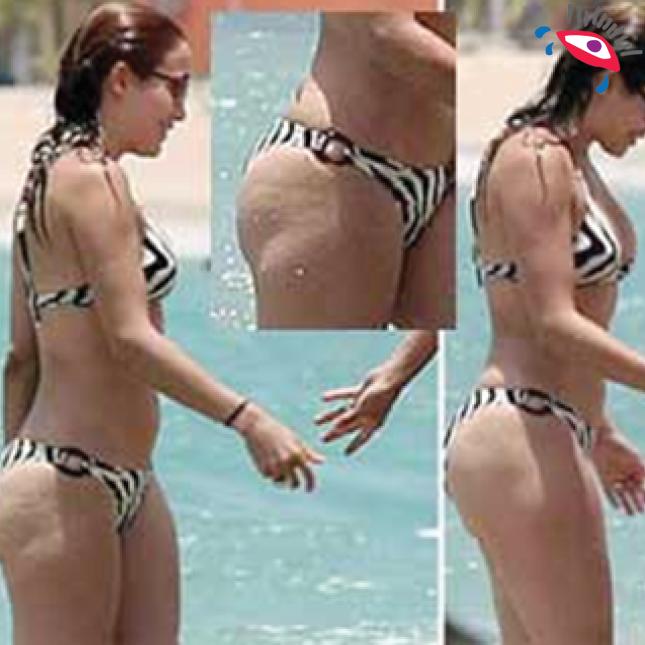 8 momentos en que la celulitis traicionó a Jennifer Lopez. celulitis3.png