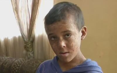 Extraña enfermedad condena a un niño mexicano a vivir en las sombras