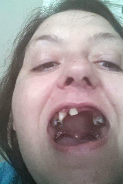 La boca de Lynda Dobbins era un total desastre y ella siempre se sentía...