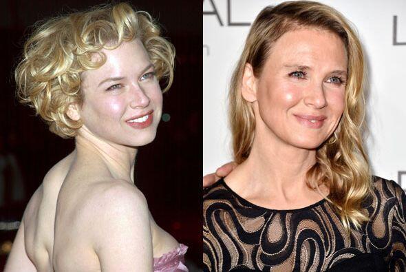 Aquí te mostramos un antes y un después de Renée Zellweger.