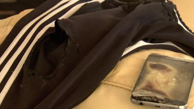 Un niño sufre quemaduras de segundo grado luego de que su celular explotara en el bolsillo del pantalón