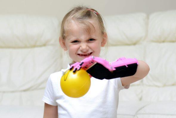 Haley Fraser que nació sin su mano izquierda por un defecto cong&...