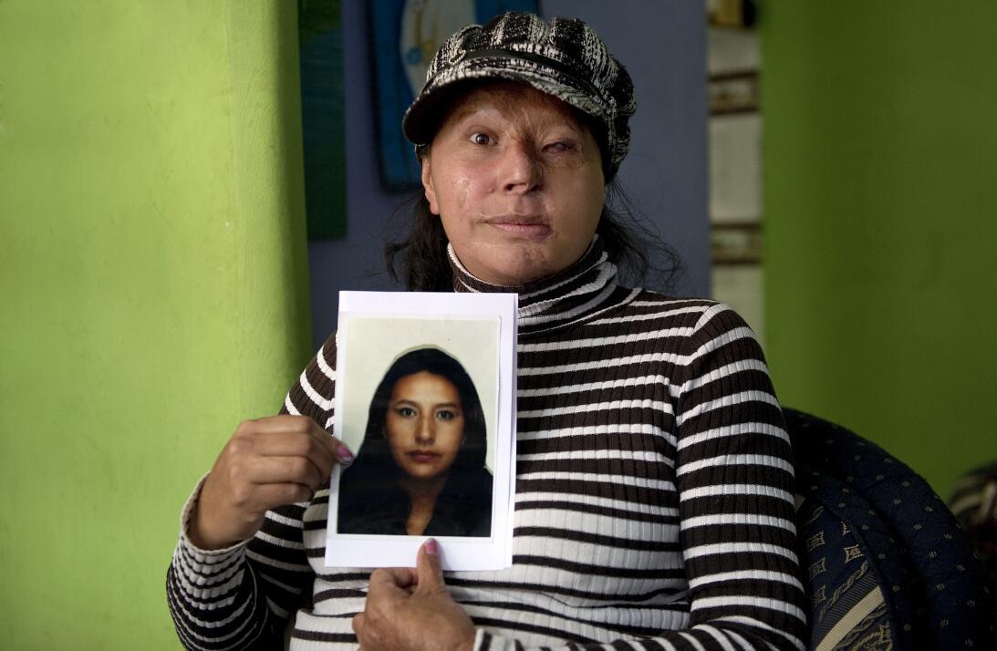 Maria Cuervo es otra de las víctimas de este tipo de ataques. Le arrojar...