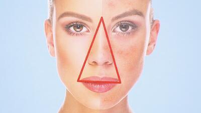 El triángulo de la muerte del rostro: ¿De dónde a dónde es y por qué resulta tan peligroso?