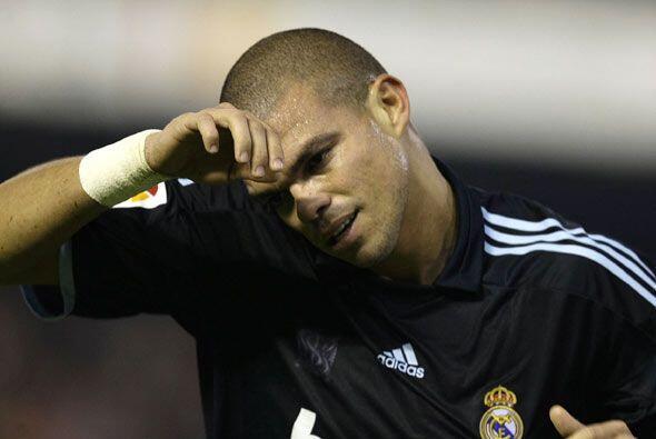 Mal día para el portugués Pepe. recibió varios golpes en la cabeza que y...