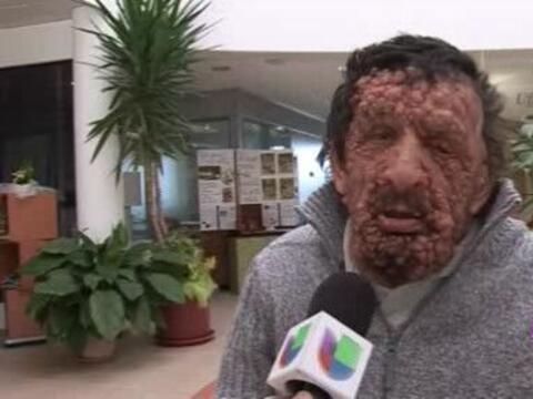 Vinicio Riva, un italiano de 59 años con neurofibromatosis, cont&...