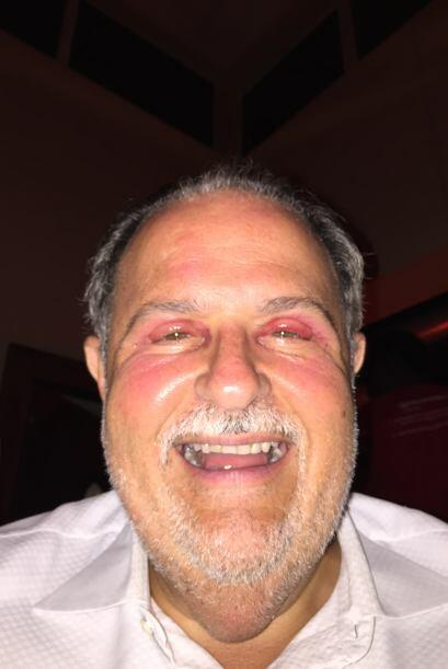 El Gordo de Molina confesó que, aunque le dieron pastillas para el dolor...