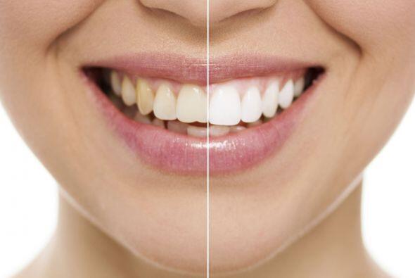 Blanqueo dental. Hay 3 formas de blanqueamiento: en una clínica con luce...