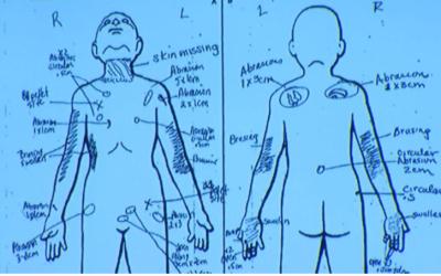 Gráfico presentado en la corte para explicar las distintas lesion...