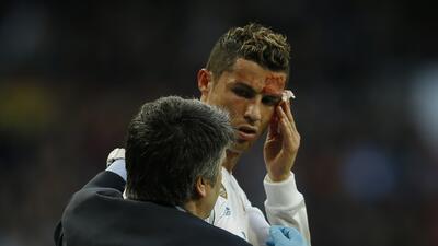 El portugués Cristiano Ronaldo recibe atención por una cor...