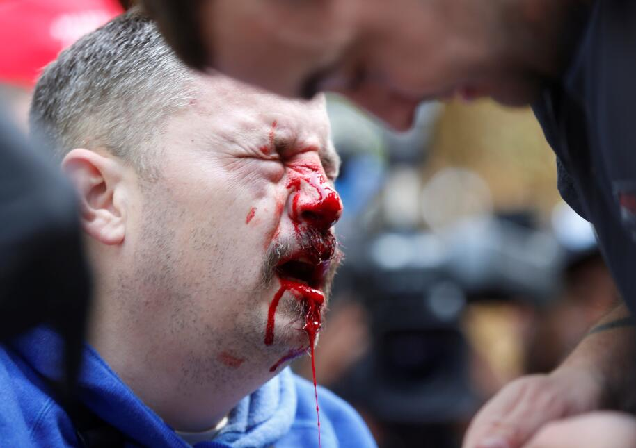 Un simpatizante del presidente Trump sangra luego de un encontronazo con...