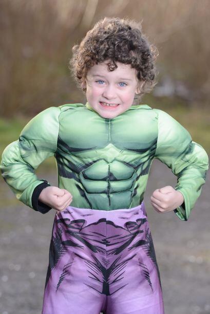 Callum Peers, ha tenido una recuperación exitosa y ahora Hulk se ha conv...